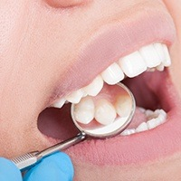 Zubný kaz a príčiny jeho vzniku
